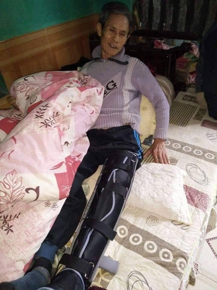 Dân sinh - Cụ ông U70 gãy xương đùi hồi phục quá nhanh khiến bác sĩ điều trị bất ngờ