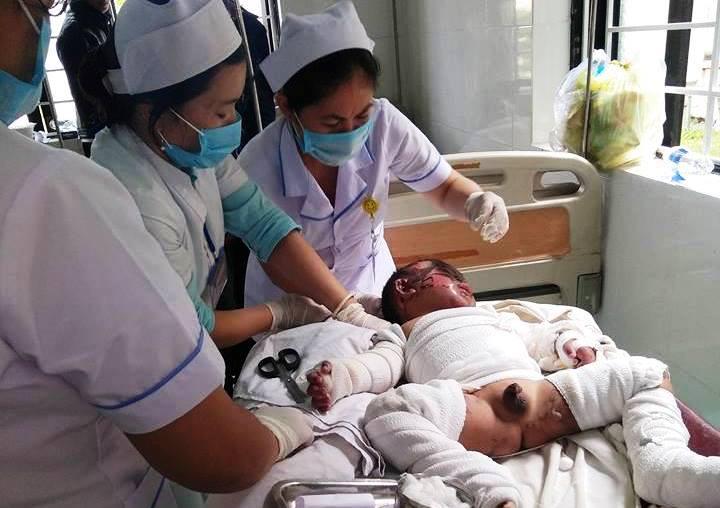 Chính trị - Xã hội - Đắk Nông: Chong đèn dầu bắt muỗi, hai mẹ con bỏng nặng