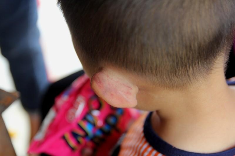 An ninh - Hình sự - Bé 3 tuổi bị cha dượng đánh: Bác sĩ thông tin thương tích cháu bé (Hình 2).