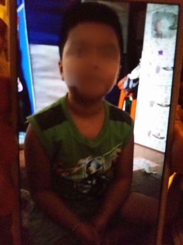Xã hội - Người mẹ xót lòng khi con trai 10 tuổi bị cha đẻ và mẹ kế bạo hành