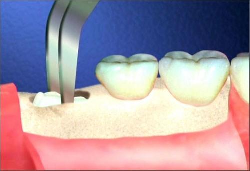 Sức khỏe - Từ vụ chết người vì nhổ răng: Những nguy cơ có thể xảy ra khi nhổ răng số 8