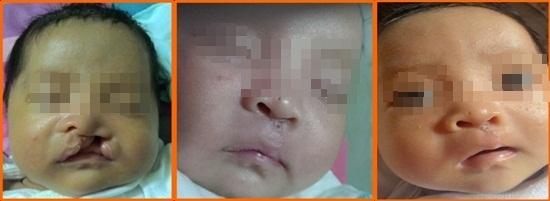 Các bệnh - Những lưu ý chăm sóc trẻ sau phẫu thuật khe hở môi