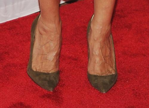 Tư vấn - Suy tĩnh mạch, biến dạng cột sống vì thường xuyên đi giày cao gót