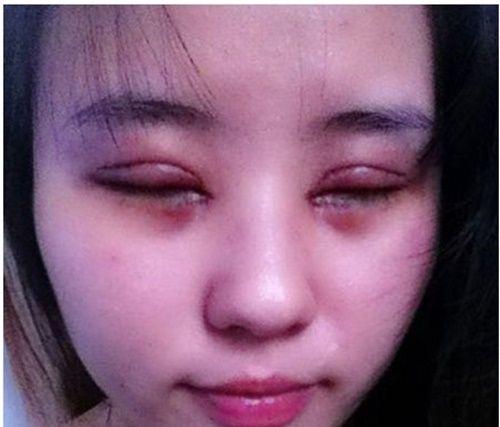 Làm đẹp - Hậu nhấn mí, cô gái trẻ vĩnh viễn không thể nhắm mắt (Hình 2).