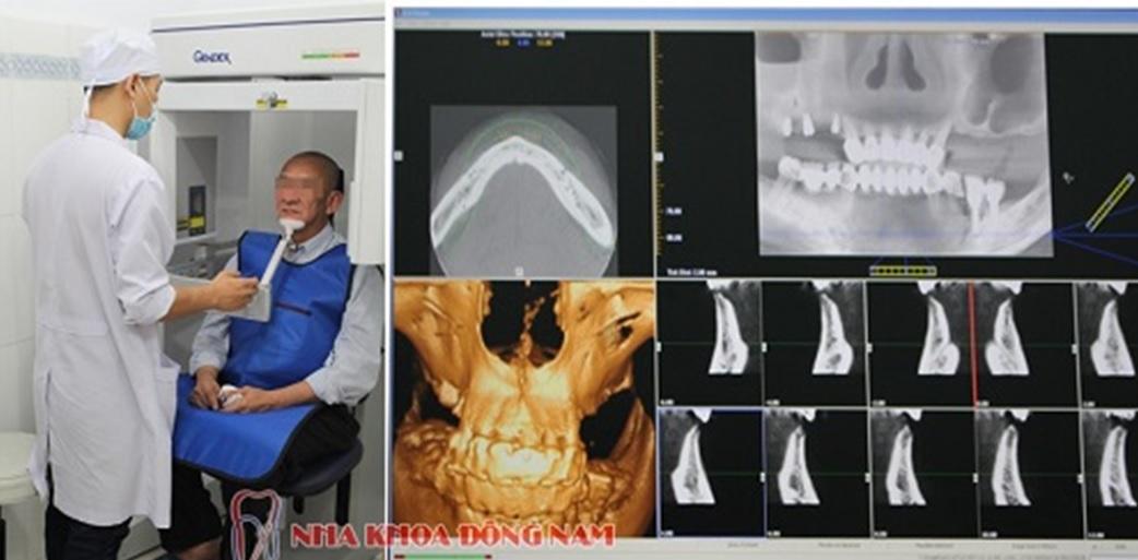 Truyền thông - Công nghệ cấy ghép ETK Active lên răng sau 48h là gì? (Hình 2).