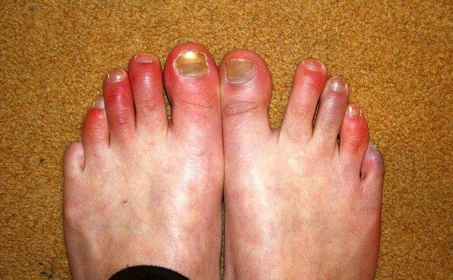 Các bệnh - Đề phòng bệnh cước tay, chân trong những ngày rét đậm