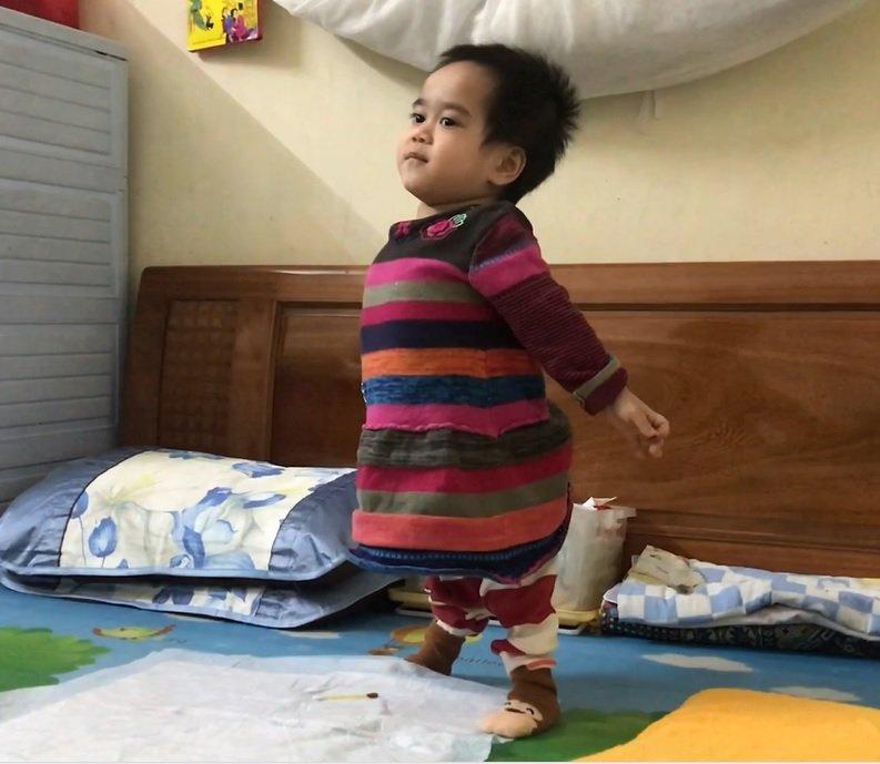 Xã hội - Em bé đi bằng '4 chân' sống nhờ bao cao su, băng vệ sinh đau đớn với 8 lần phẫu thuật (Hình 3).