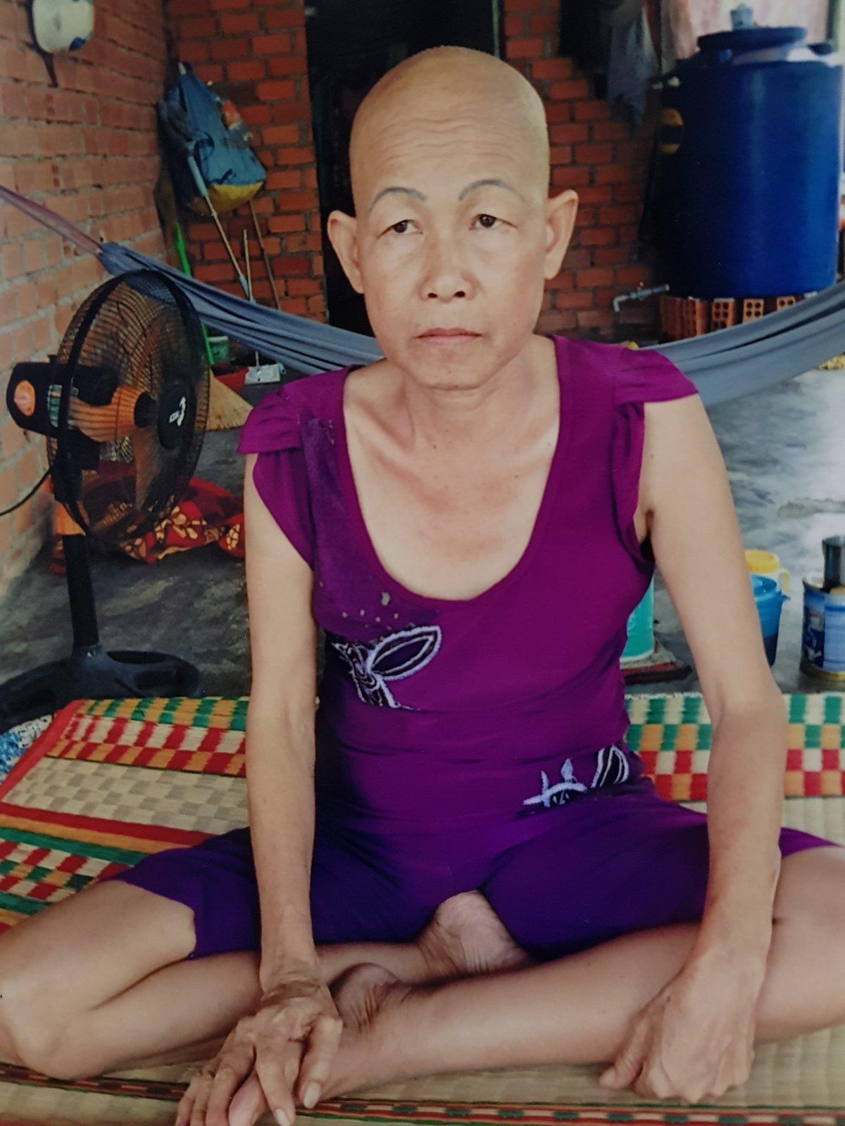 Gia đình - Con trai quặn thắt, ước mẹ chiến thắng căn bệnh ung thư quái ác