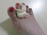 Hồ sơ điều tra - Người vợ bị chồng chích điện suýt chết đã bị cắt bỏ 2 ngón chân