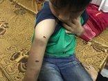 Xã hội - Bé trai học lớp 4 bị bố đánh bằng dây điện,  người chi chít thương tích