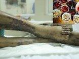 Các bệnh - Để tết Mậu Tuất an lành nên tránh xa món ăn khoái khẩu này