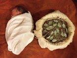 Góc nhìn luật gia - Sinh con kiểu thuận tự nhiên, con tử vong mẹ có thể bị xử lý hình sự?