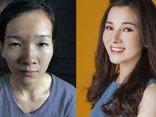 Cộng đồng mạng - Cô gái 'mắt lươn' thành hotgirl: Phụ nữ ai cũng có quyền làm cho mình đẹp hơn