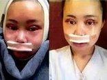 Gia đình - Trải lòng của cô gái trải qua 7 ca phẫu thuật để giống thần tượng