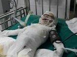 Tin nhanh - Cháu bé hơn 2 tuổi ngã vào hố vôi đang sôi ở Nghệ An đã qua đời