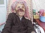 """Các bệnh - """"Bệnh lạ"""" ăn mòn vùng miệng, biến dạng khuôn mặt của cụ bà 80 tuổi"""