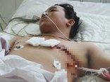 Tin nhanh - Cứu sống bệnh nhân bị kéo đâm thủng tim