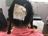 Làm đẹp - Nữ bác sĩ mất nguyên mảng da đầu sau khi uốn tóc setting