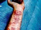 Sức khỏe - Không được đi du học, nữ sinh hủy hoại thân thể bằng dao lam