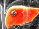 Sức khỏe - Bệnh ung thư gan PGS. Văn Như Cương mắc phải nguy hiểm ra sao?