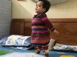 Xã hội - Em bé đi bằng '4 chân' sống nhờ bao cao su, băng vệ sinh đau đớn với 8 lần phẫu thuật