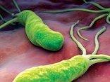 Sức khỏe - Làm gì để phát hiện loại vi khuẩn mà 70% người Việt mắc phải?