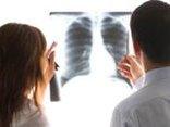 Các bệnh - Điểm mặt 6 bệnh ung thư phổ biến ở Việt Nam
