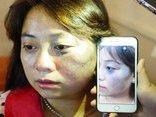 Sức khỏe - Người phụ nữ bị chàm bẩm sinh, khóc như mưa khi điều trị ở đây