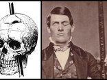 Hồ sơ - Dầm sắt xuyên đầu và bí ẩn kinh điển nhất nền y học nhân loại