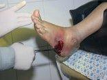 Các bệnh - Uống mật ong giả, người đàn ông bị tiểu đường, loét 2 bàn chân