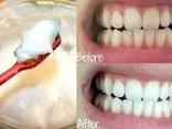 Gia đình - Các bước làm răng trắng sáng với dầu dừa