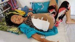 Sức khỏe - Sốc: Người phụ nữ mang 2 khối u 'khủng' nặng 10kg