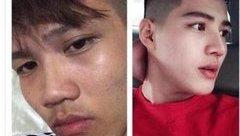 Cộng đồng mạng - Bị người yêu bỏ rơi vì xấu xí, chàng trai 'lột xác' thành hot boy