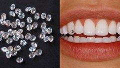 Cộng đồng mạng - Chấp nhận đau đớn để bọc răng sứ, đính kim cương, sau 3 ngày cô gái trẻ 'khóc ròng'
