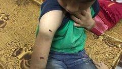 Xã hội - Vụ bé trai bị bố dùng dây điện đánh: Vợ cũ rút đơn, đồng ý hòa giải