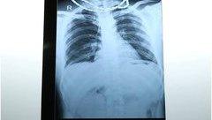 Sức khỏe - Cứu sống bệnh nhân bị đâm thấu bụng, thấu ngực
