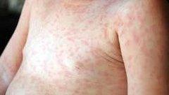 Sức khỏe - Hơn nửa số bệnh nhi mắc sởi điều trị tại BV Nhi chưa đến tuổi tiêm phòng