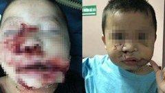 Tin nhanh - Khuôn mặt bị chó cắn dập nát của bé trai 2 tuổi được tái tạo sau 3 giờ phẫu thuật