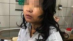 Xã hội - Nữ điều dưỡng nghi uống thực phẩm chức năng giảm cân ở Sơn La đã tử vong