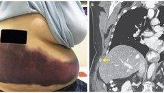 Các bệnh - Người phụ nữ bị gãy xương sườn vì ho quá mạnh