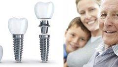 Cần biết - Trồng răng giả cho người già nên chọn loại nào?