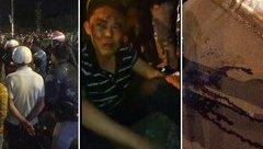 Góc nhìn luật gia - Cha sát hại con 5 tuổi: Phải chịu sự trừng phạt của pháp luật và bản án lương tâm