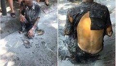 An ninh - Hình sự - Hà Nội: Người dân giải cứu kịp thời cụ ông đổ xăng tự thiêu giữa đường