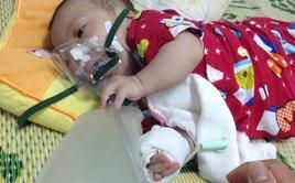 Đời sống - Sự sống mong manh của bé trai vừa sinh đã mắc bệnh hiểm nghèo