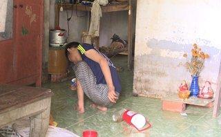 Tin nhanh - Bé trai khuyết tật nghi bị mẹ ruột ngược đãi, không cho ăn uống
