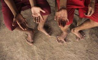 Sức khỏe - Kỳ lạ 2 anh em có 26 ngón tay, chân ở Quảng Bình