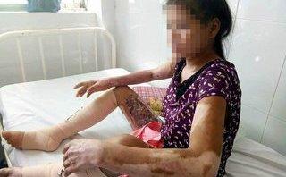 Gia đình - Chồng sắp cưới ôm tiền từ thiện bỏ mặc vợ mang thai bị bỏng nặng