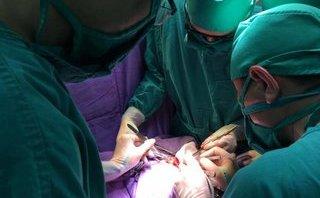 Sức khỏe - Quảng Ninh: Phẫu thuật cứu sống bé 1 ngày tuổi bị phình đại tràng