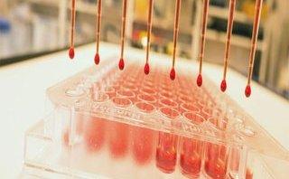 Công nghệ - Thử máu chẩn đoán sớm ung thư bằng... sóng âm thanh