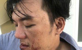 An ninh - Hình sự - Tiết lộ sốc vụ thực khách tố nhà hàng đánh chấn động não ở Đà Nẵng